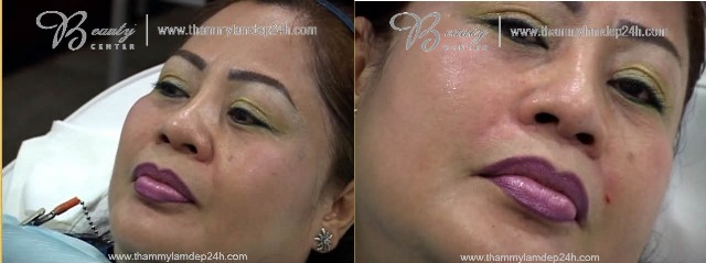 Hình ảnh trước và sau khi xóa nếp nhăn bằng Filler Radiesse và Belotero