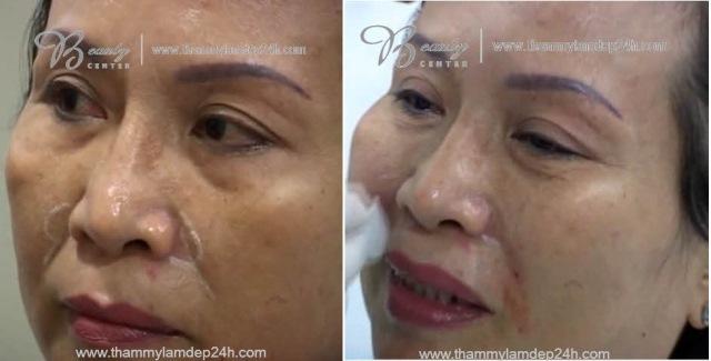 Hình ảnh trước và sau khi xóa nếp nhăn bằng Filler Radiesse và ZFill